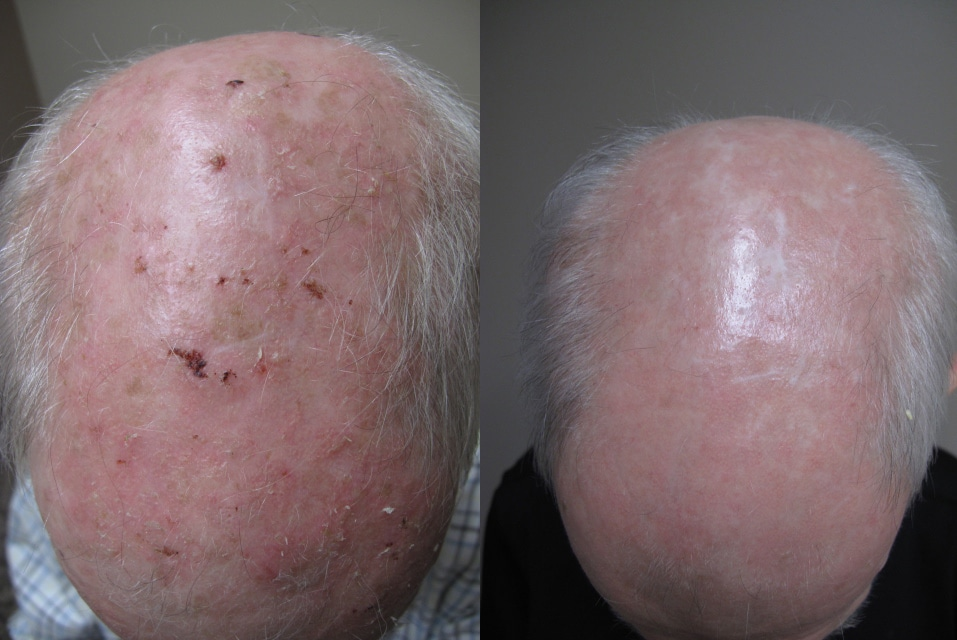 Ala Tx For Scalp Actinic Keratoses