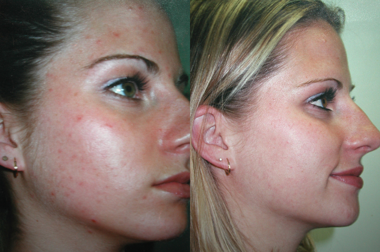 Before And After Acne Tx
