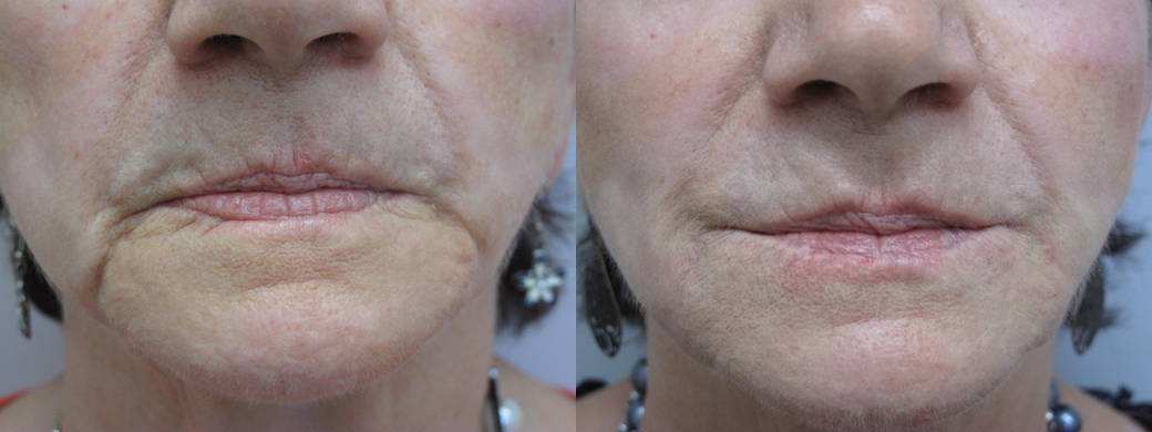 Dermal Filler Lower Face