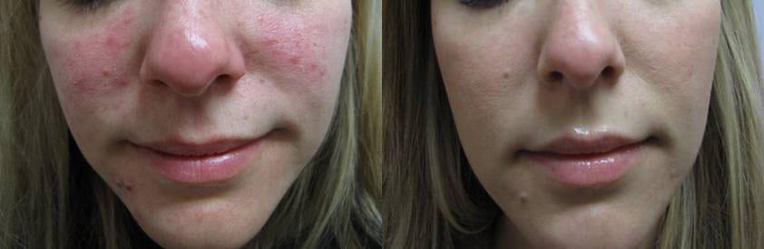 Gallery Kingston Laser Cosmetic Clinic Kingston On