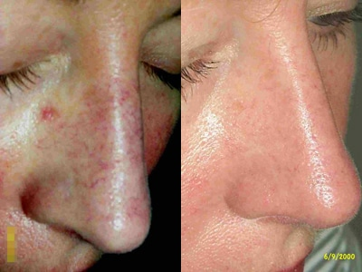 Before And After Laser Tx Spider Veins On Nose