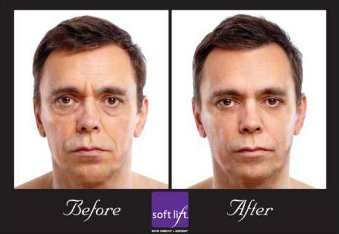 Before And After Softlift Mans Face