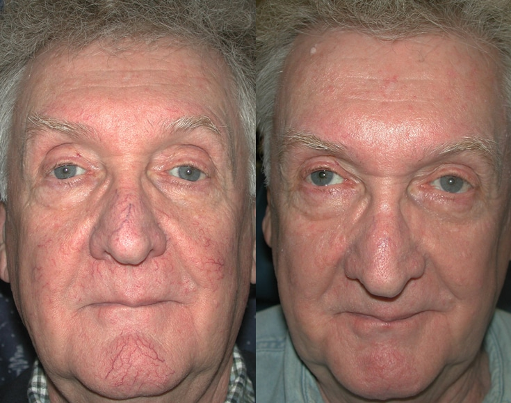 Before And After Laser Tx Spider Veins Face J