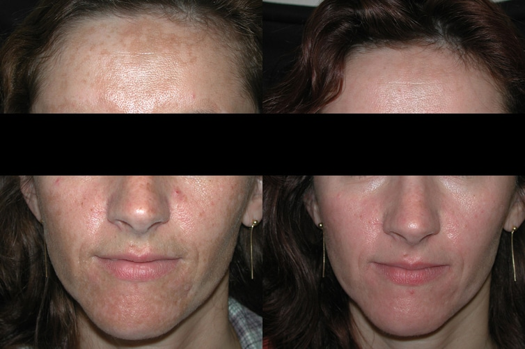 Before And After Peels For Melasma