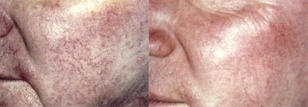 Rosacea Before And After Ipl Tx