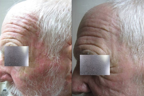 Before And After Ala Tx To Actinic Keratoses Face
