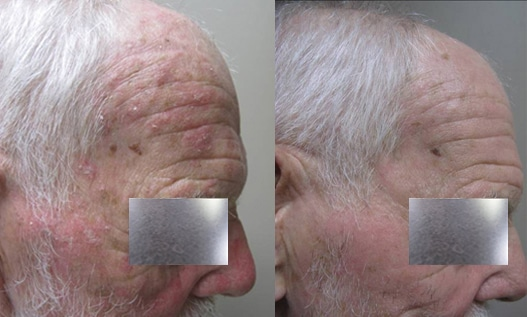 Before And After Ala Tx For Actinic Keratoses Face