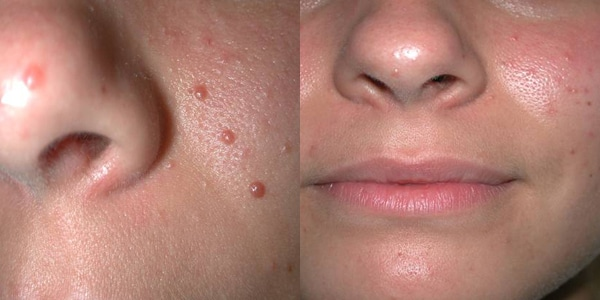 Before And After Laser Tx Moles On Face
