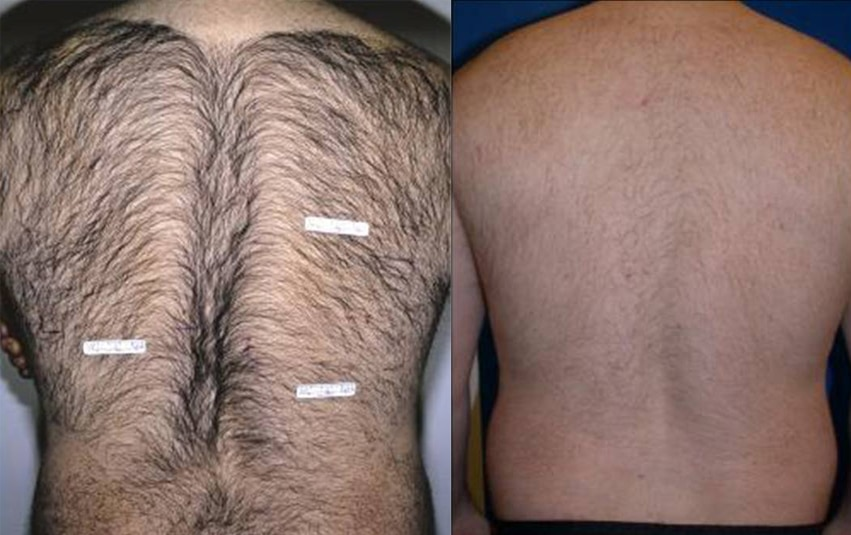 Laser Hair Removal Mans Back