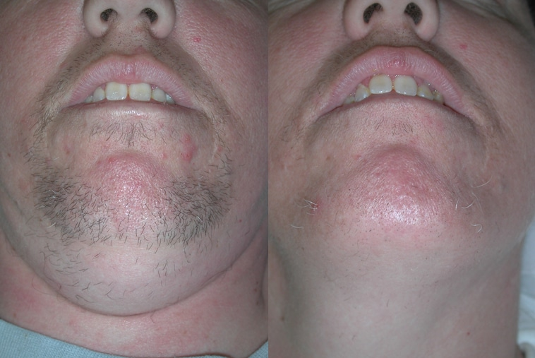 Before And After Laser Hair Removal Chin
