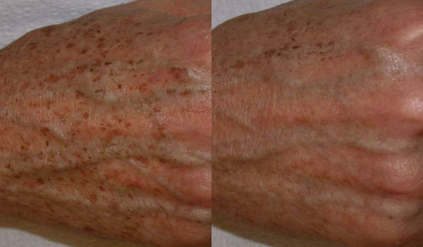 Brown Spots On Hands Before And After Ipl Tx