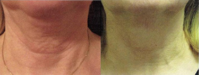 Skin Tightening Tx Neck