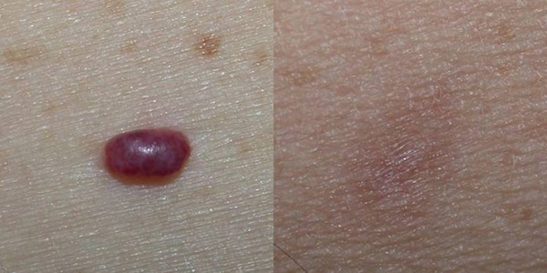 Before And After Laser Tx Hemagioma