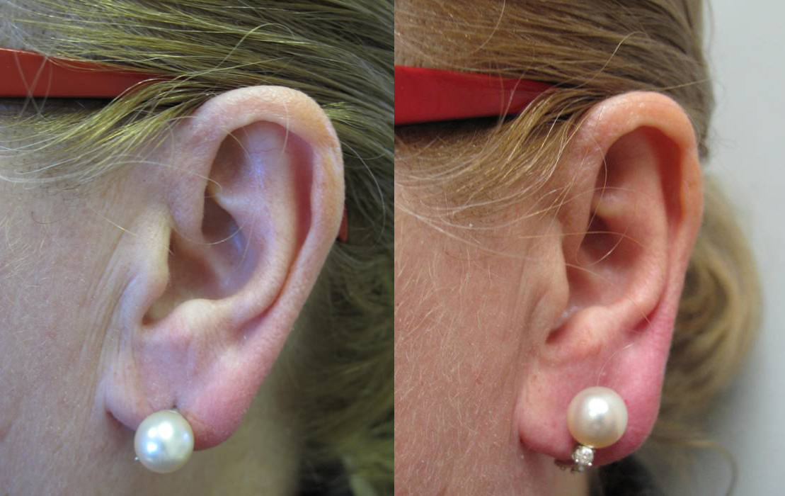Dermal Filler Earlobe Repair