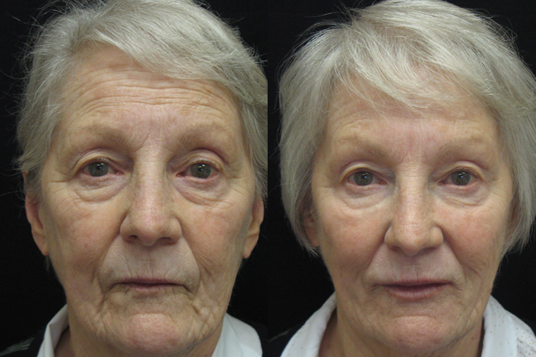 Before And After Dermal Filler Womans Face