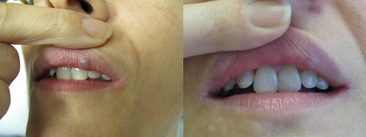 Laser Tx Venous Lake On Lip