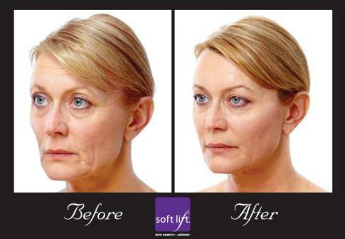 Before And After Softlift Womans Face