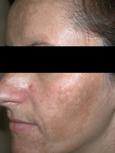 Microderm Case 2 Before