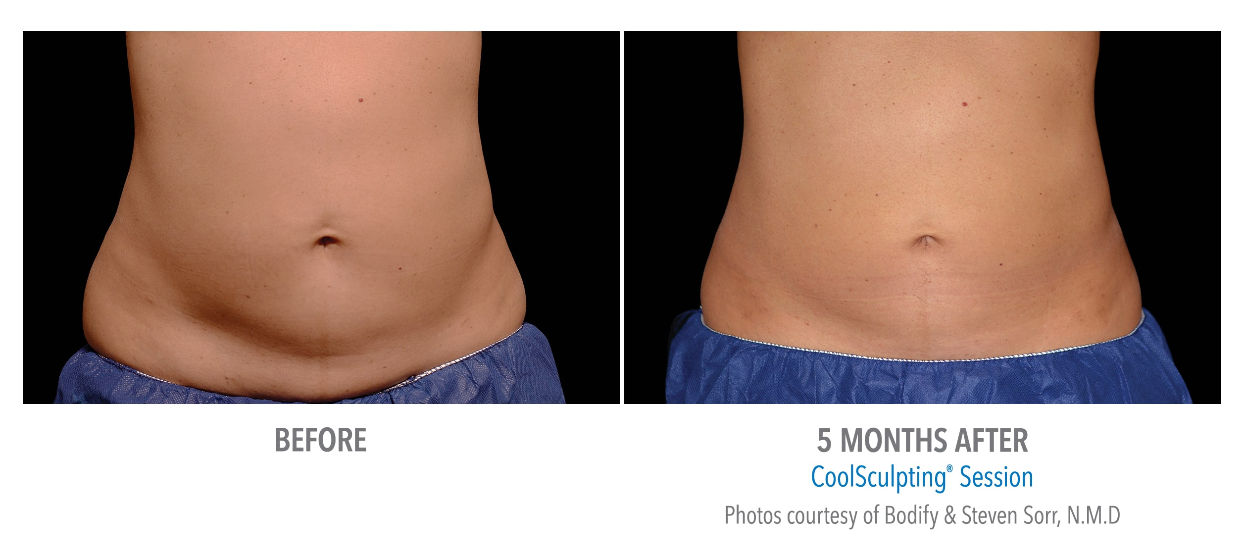 Coolsculpting Services Kingston Laser Cosmetic Clinic