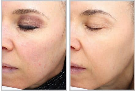 Laser and Light Therapy - Kingston Laser Cosmetic Clinic